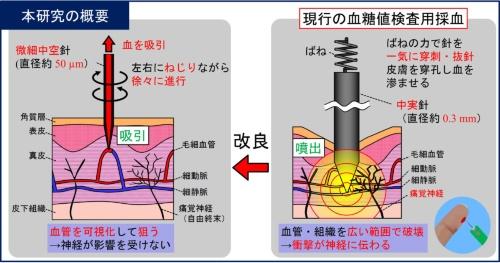 無痛採血システムと従来の採血方法の比較