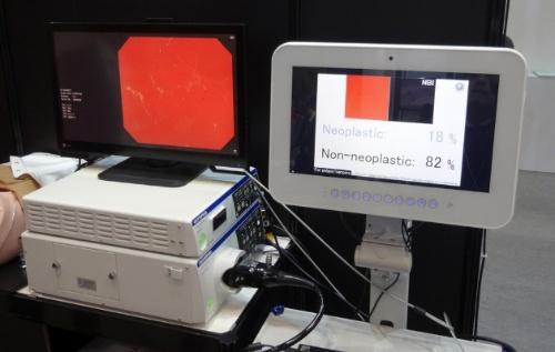 EndoBRAINと連携した内視鏡システム。画面表示をシンプルにし、機器の操作も簡単にした