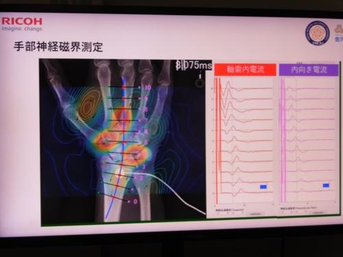 脊磁計で神経磁界を測定し可視化した際のイメージ