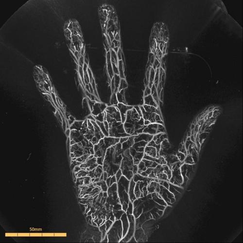 手のひらの血管を光超音波技術で撮影した画像