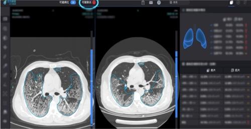 インファービジョンが開発した、新型コロナウイルスによる肺炎のAI診断支援システム