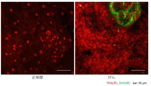 染色なしで多光子励起顕微鏡で観察した、ヒトの子宮頸部の正常組織(左)と子宮頸がん(右)