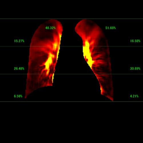 血管の拍動を可視化する