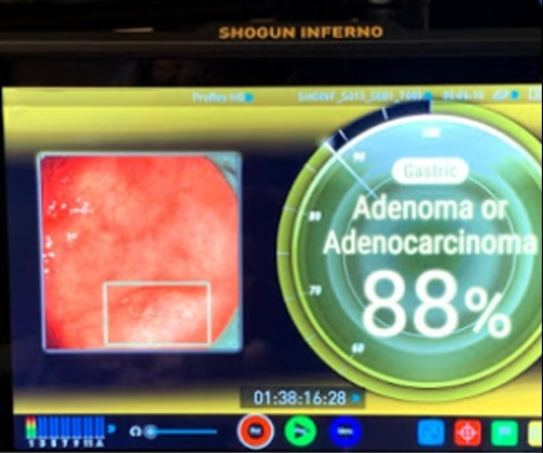 AI画像判定システムの画面