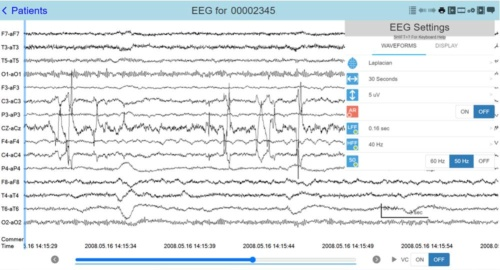 てんかんの疑いのある患者の脳波の動画データをクラウドで共有する