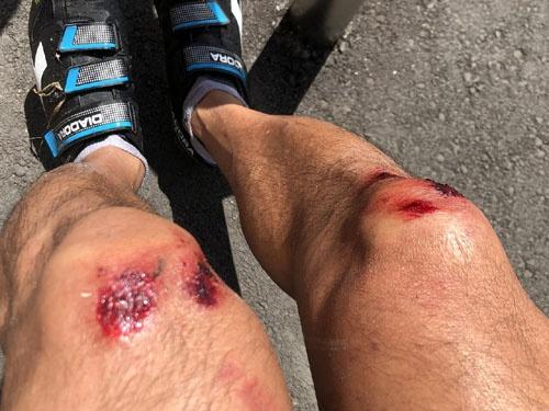 久しぶりにバイクに乗ったら落車しました。五十ヅラ下げて膝小僧を擦り剥いて面目次第もございません。