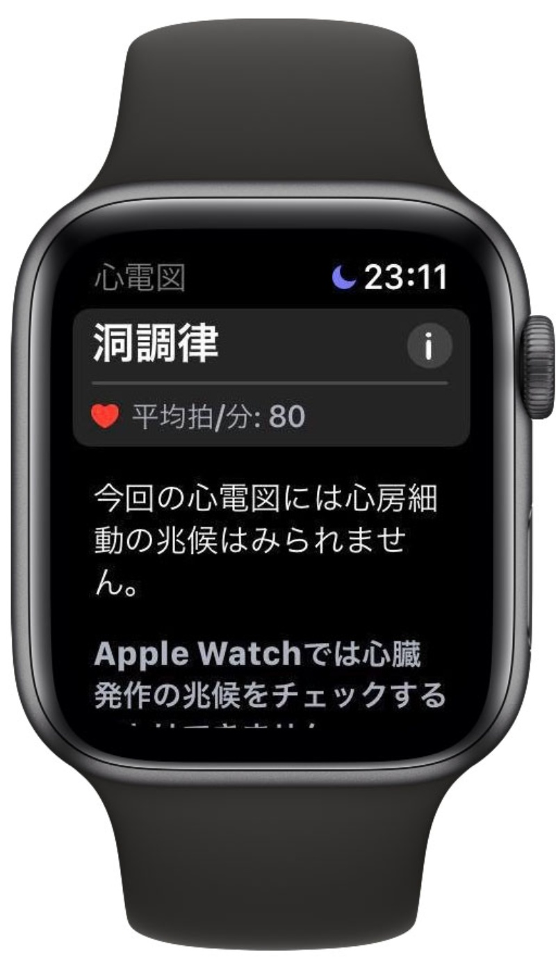 Watch 心電図 apple