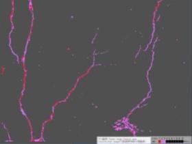 ひび割れを抽出して、TFC(対象画像特徴&非対象画像特徴領域内分類アルゴリズム)の処理で深さに応じて色分け表示した画像。色が濃いほどひび割れが深い(写真:日本工営、日本システムウエア)