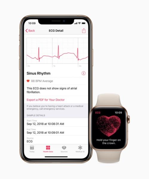 腕時計型端末「Apple Watch」(右)と連動するアプリ画面。日常生活と医療をつなぐウエアラブル端末に関心が高まっている