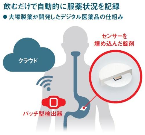 センサーが胃液と反応すると信号を発し、検出器を介してクラウドにデータを蓄積する