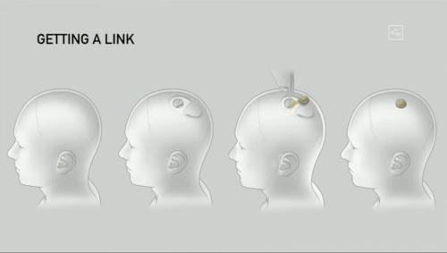 手術の流れ(NeuralinkがYouTubeで公開している動画をキャプチャーしたもの)