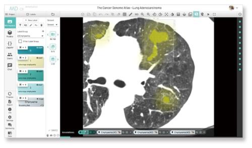NTTデータが開発したAI画像診断システム。黄色の部分は臓器の異常を表す