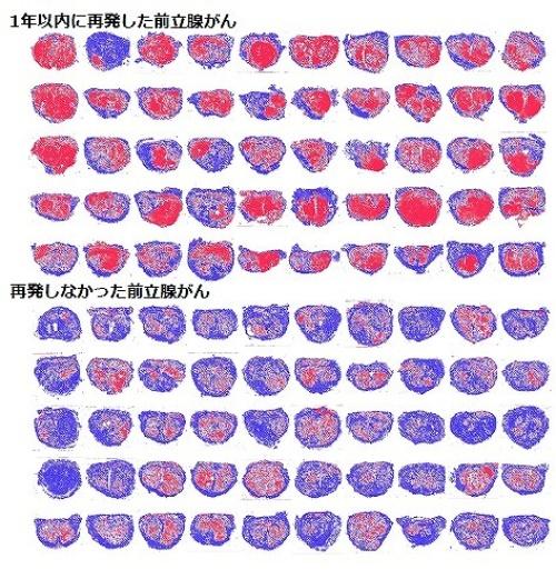 1年以内に再発した前立腺がんの病理画像は、再発率の高い分類に属する画像パターンを多く含む