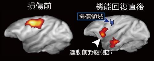 損傷する前のサルの脳(左)とリハビリで機能が回復した後のサルの脳(右)の陽電子放出断層撮影(PET)画像