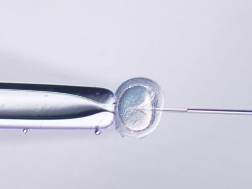 卵子に精子を注入する顕微授精作業の様子