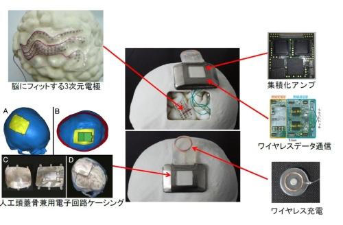 大阪大学で開発された低侵襲型BMIのイメージ