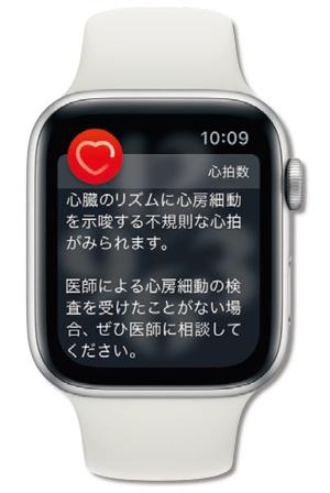 心電図と心拍を計測することで「心房細動」の兆候を検知するApple Watchシリーズ。管理医療機器の承認を受けている
