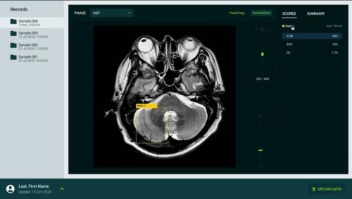 スパースモデリング技術は創薬だけでなく画像診断などへの応用も進む