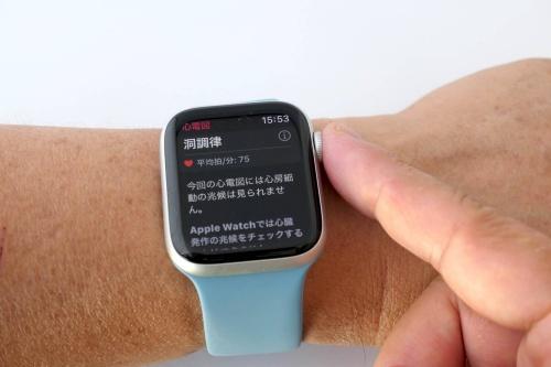 Apple Watchの心電図機能は、側面のボタンに指先を当てて30秒ほどじっとしているだけで測定できる。正常だと「洞調律」と表示される