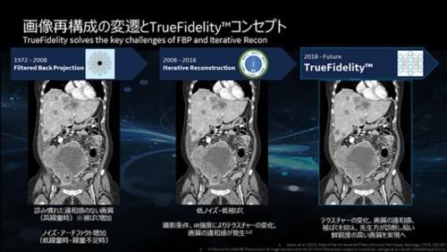 画像再構成の変遷とTrueFidelityコンセプト(出所:GEヘルスケア・ジャパン)