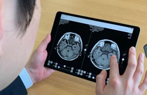 医療従事者が医用画像をモバイル端末で確認できる(出所:キヤノンマーケティングジャパン)