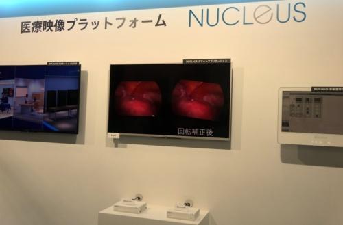 医療映像プラットフォーム「NUCLeUS」(撮影:日経 xTECH)
