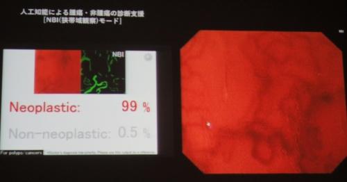 判定画面(左)と大腸内視鏡画像(右)