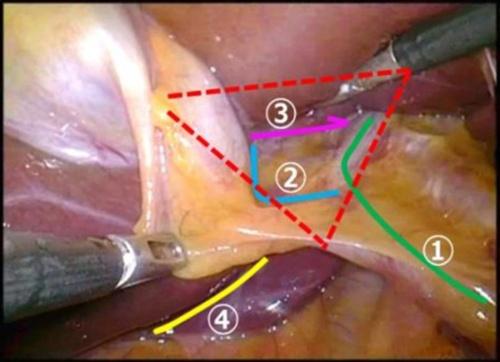 腹腔鏡下胆のう摘出術(LC)における4つのランドマーク表示。①胆管・総肝管、②胆のう管、③肝S4の下縁、④ルビエレ溝