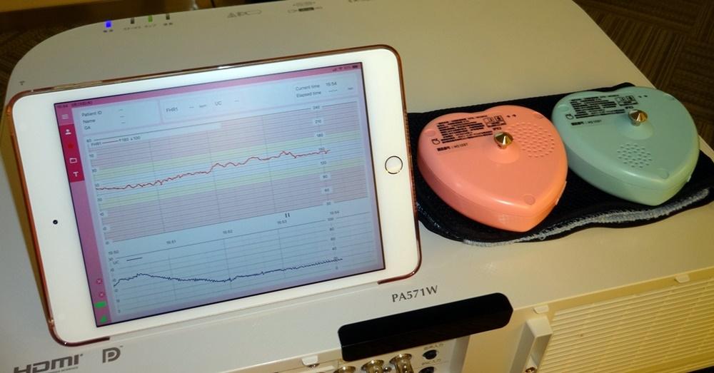分娩監視装置iCTG