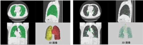 間質性肺炎に罹患(りかん)した肺での高精度な自動抽出のイメージ。左の写真の緑色部分が肺野で、画像を再構成して3D画像を作成できる(出所:富士フイルム)