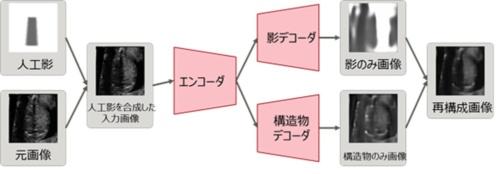 ラベルなしデータで超音波画像の影を学習するモデル(出所:理化学研究所などの共同研究グループ)