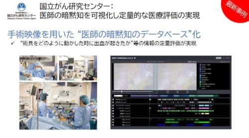 手術映像のデータベースの構築にAzureを活用
