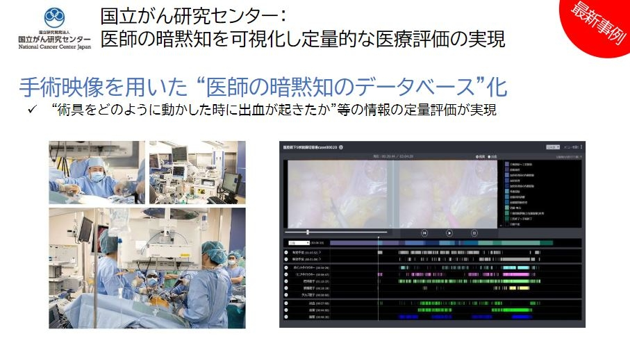 手術映像のデータベースの構築にAzureを活用 (出所:日本マイクロソフト)