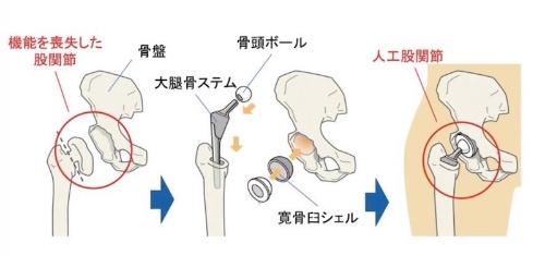 図2:人工股関節置換手術の仕組み(出所:京セラ)