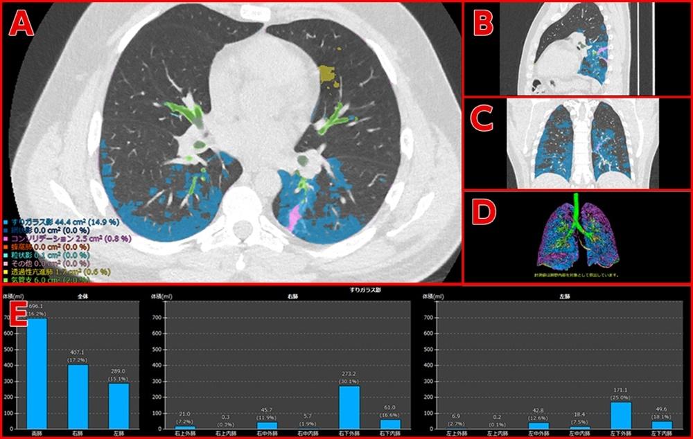 新型コロナウイルス肺炎の患者のCT画像および解析結果。AはCT画像のアキシャル像(体を横に切った像)、Bはサジタル像(体を縦に切った像)、Cはコロナル像(体を前後に切った像)、Dは3D画像それぞれに病変の識別結果、Eは指定した病変がどの領域にどの程度発生しているかを表示したグラフ。(出所:富士フイルム)