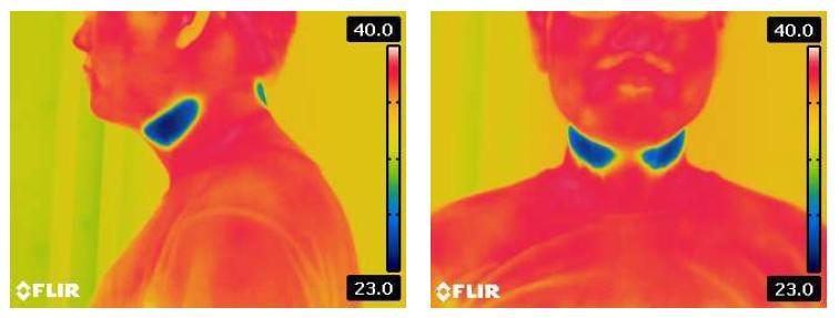 首の部分を冷却して深部体温を下げる (出所:富士通ゼネラル)