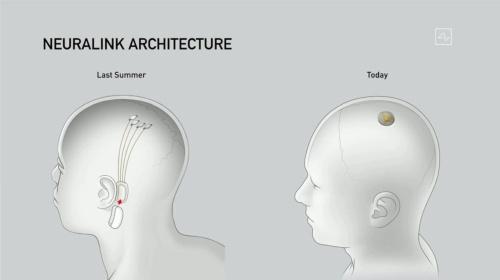左側が19年の脳直結型デバイスで、右が今回のコインサイズのもの