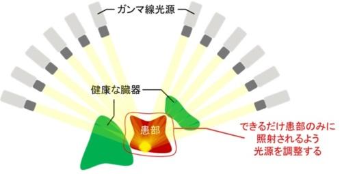 ガンマナイフ治療計画のイメージ