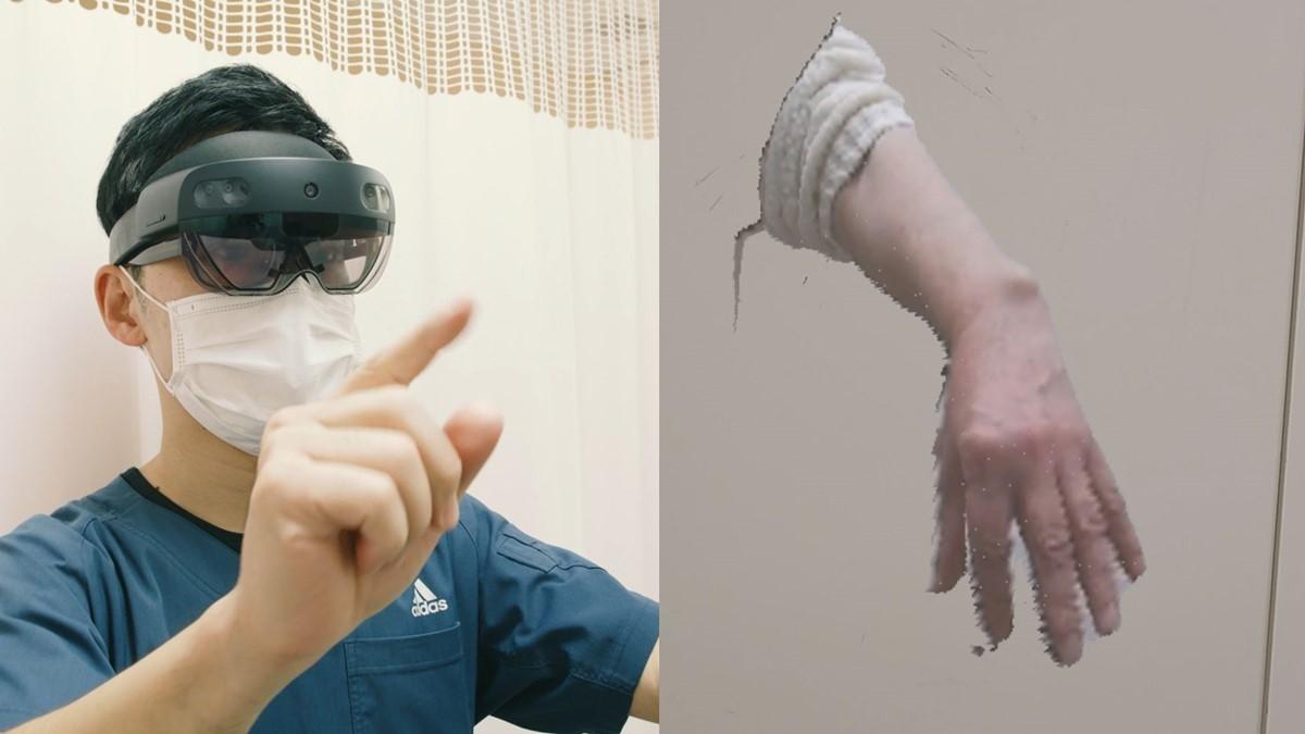 複合現実の技術で遠隔の患者の手を投影 (出所:日本マイクロソフト)